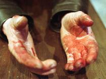 7_ножевое ранение